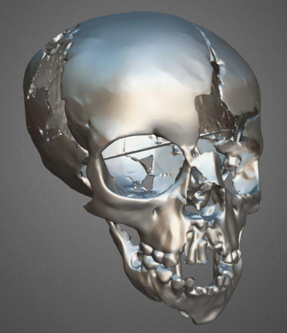 kết quả sắc nét chính xác scan 3d hộp sọ 6000 tuổi