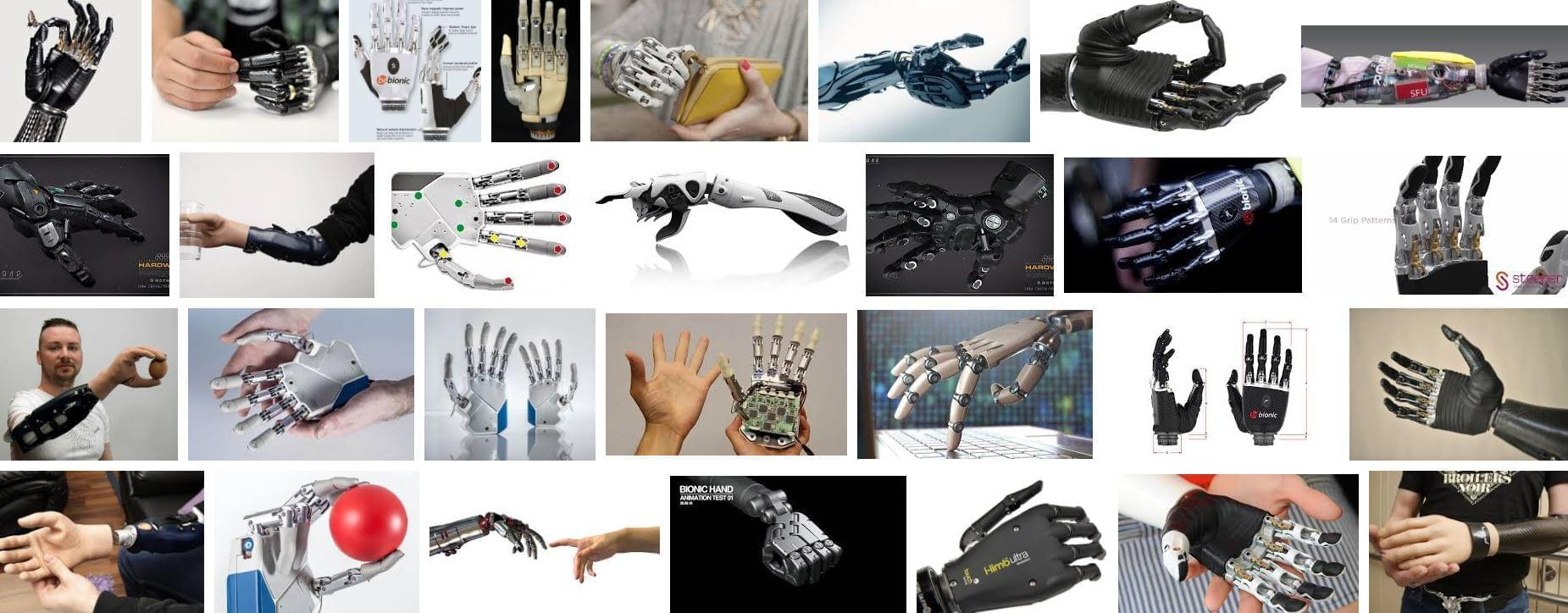 The prosthesis is controlled by the nerve